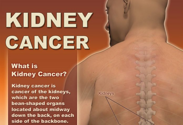 Kidney cancer is cancer of the kidneys, which are the two bean-shaped organs located about midway down the back, on each side of the backbone. The kidneys filter excess water, salt, and waste to create urine and release important hormones. This infographic gives insights into causes, symptoms and other important information about kidney cancer.