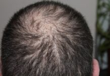 All men lose hair progressively as they grow older. For some the loss is barely noticeable. For others it is obvious, and when hair loss is severe or occurs at a young age can be very distressing. The hallmark of male pattern balding is that hair loss progresses in a distinctive and highly reproducible pattern.