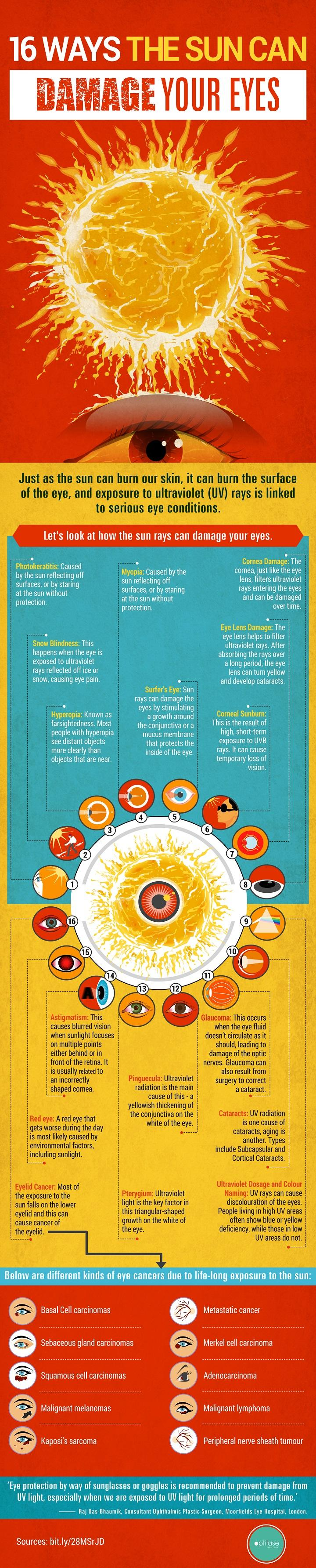 Oasdom.com - 16 ways the sun can damage your eyes