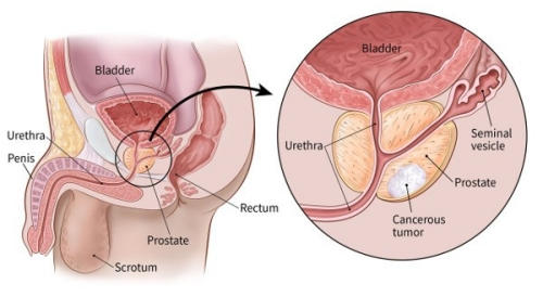 prostate cancer tips
